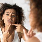 Best 11 Cara Menghilangkan Jerawat Secara Aman dan Cepat